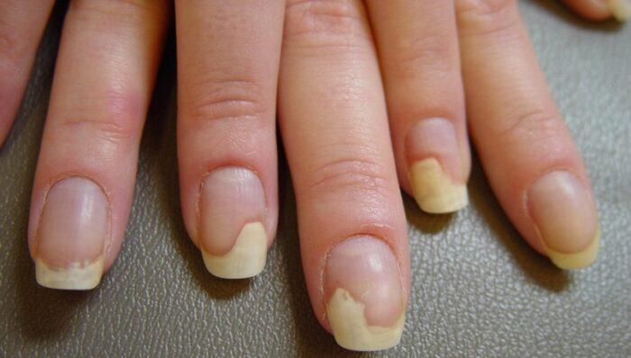 Онихолизис: внутренние причины и лечение отслоения ногтя